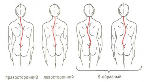 Лазерная операция на аденоме простаты